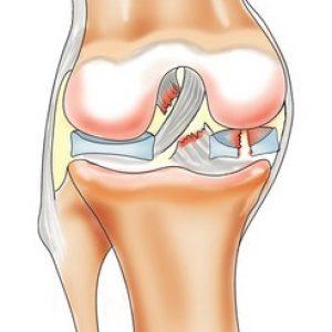 Лечение при разрыве мениска коленного сустава центры эндопротезирования суставов