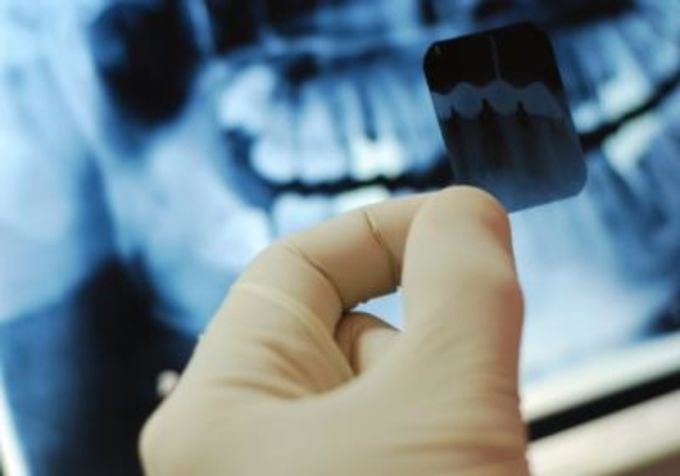 Рентген зуба при возможной беременности