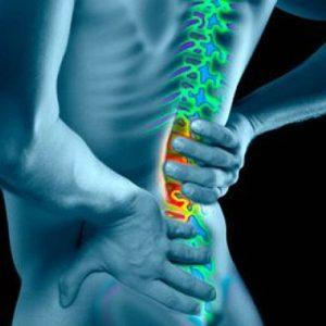 Спондилолистз смещение позвонков пояснично-крестцового отдела позвоночника симптомы