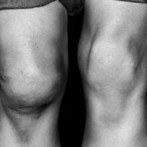 Посттравматический артроз подтаранного сустава лечение -