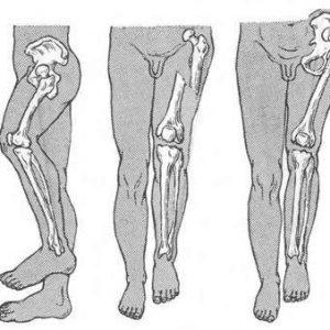 Многооскольчатый перелом бедренной кости
