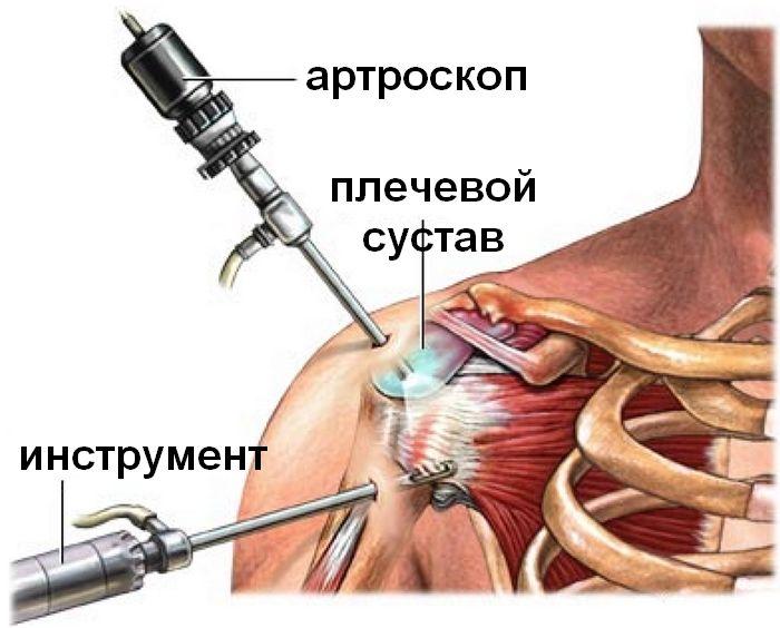 Хроническая нестабильность плечевого сустава и привычный вывих плеча