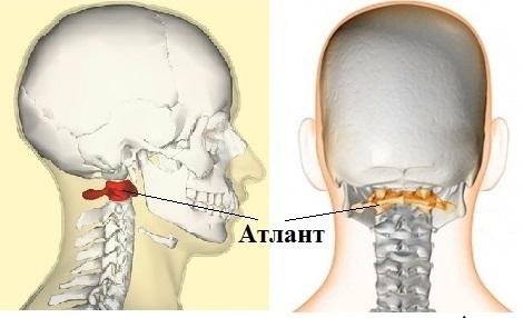 Перелом шеи лечение и последствия перелома шейного отдела позвоночника