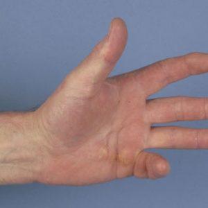 Контрактура Дюпюитрена лечение без операции