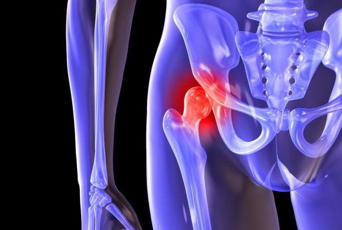 Травма артрозного сустава