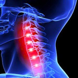 Симптомы перелома остистого отростка шейного позвонка и оказание первой помощи
