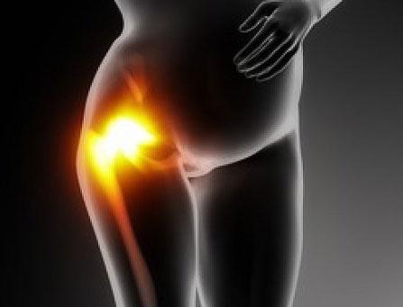 Посттравматический остеоартроз тазобедренного сустава контузионный очаг коленного сустава