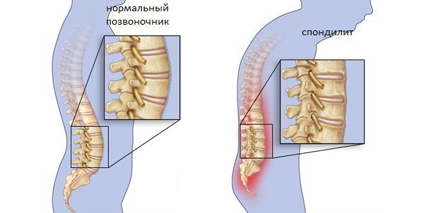 Что за болезнь туберкулез позвоночника