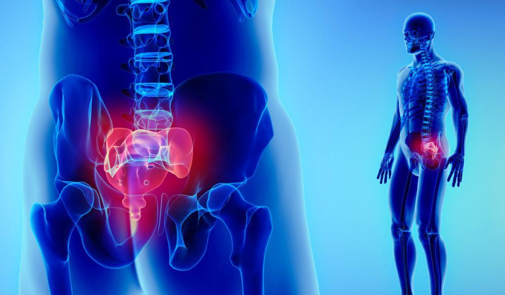 Как лечат перелом копчика - симптомы и последствия
