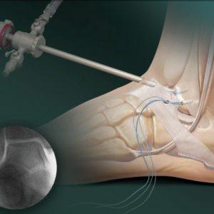 Артроз голеностопного сустава причины симптомы последствия лечение и профилактика