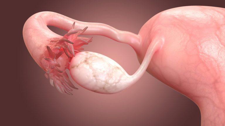 Эндометриозная (эндометриоидная) киста на правом яичнике лечение и операция