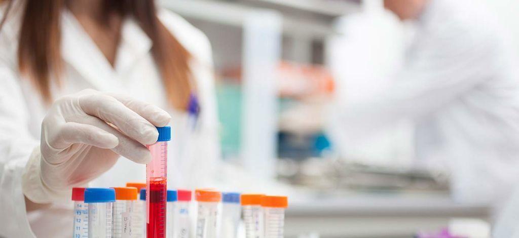 SCC онкомаркер шейки матки, антиген плоскоклеточной карциномы