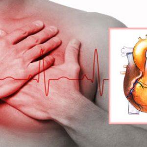 Аневризма на сердце