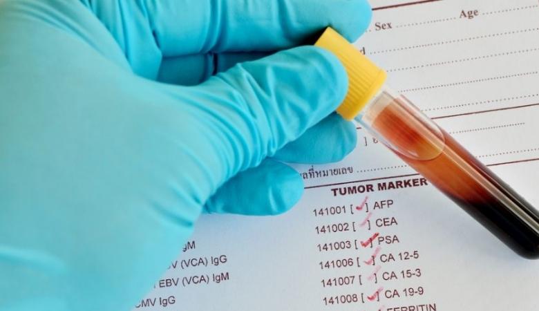 Анализ крови на онкомаркеры при раке кишечника и прямой кишки — норма и расшифровка