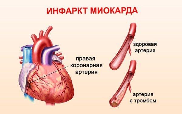 Алкогольная кардиопатия причина смерти