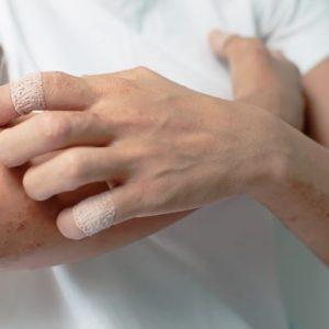 Аллергия на инсулин может ли быть реакция на гормон