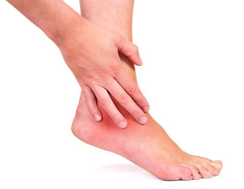 Синовит голеностопного сустава - причины, симптомы, диагностика и лечение