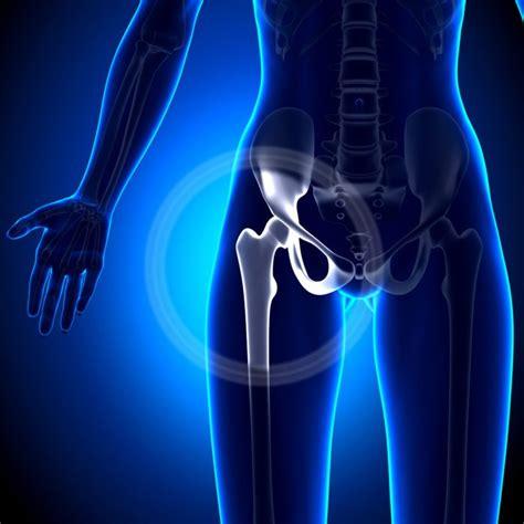 Вывих тазобедренного сустава Симптомы и лечение