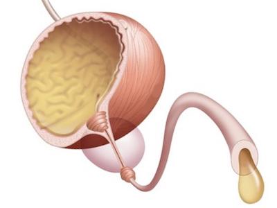 Склероз шейки мочевого пузыря тур послеоперационный период. Склероз шейки мочевого пузыря – лечение. Что собой представляет