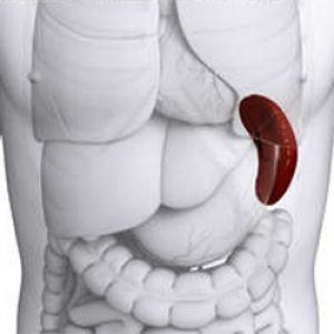 Показатели крови при гемолитической анемии thumbnail