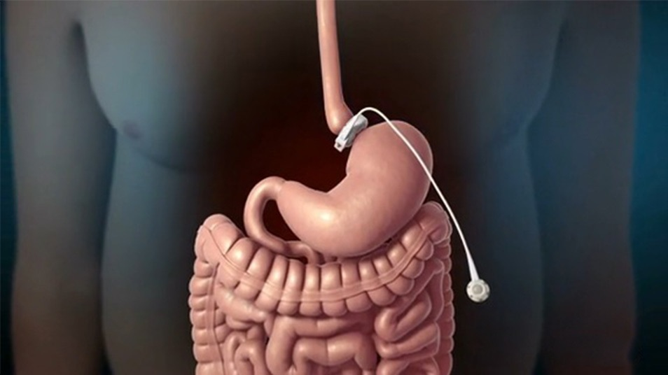 Операция Желудка Для Похудения Последствия. Стоит ли делать резекцию желудка для похудения?