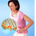 Чем лечить кандидоза кишечника