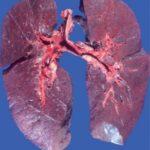 Инфаркт лёгкого: симптомы и лечение